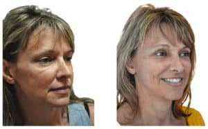Temporal Lift is done under local anesthesia