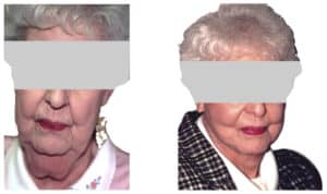 How long does temporal lift procedure take?