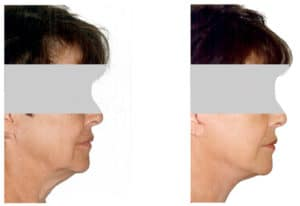 Mini Facelift nyc - Natural Look Institute - Dr. Shahar: mini facelift expert in NYC