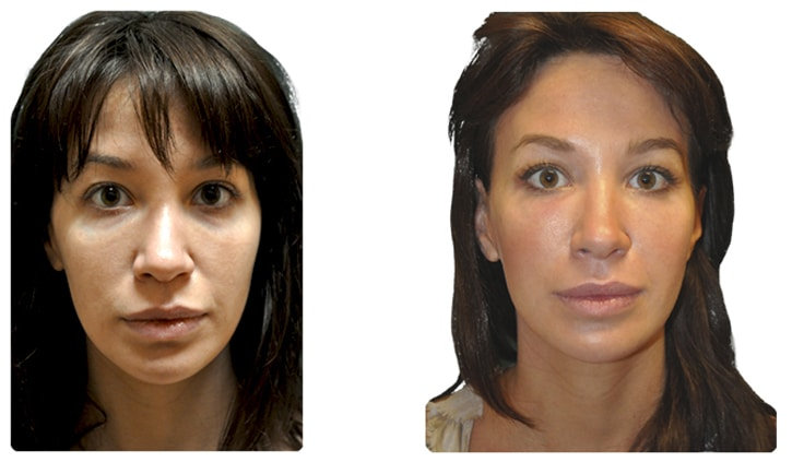 This is a before and after plastic surgery real life picture. Natural Look Institute is a plastic surgery and cosmetic surgery clinic located in New York City. Dr. Shahar is the best plastic surgeon in NYC