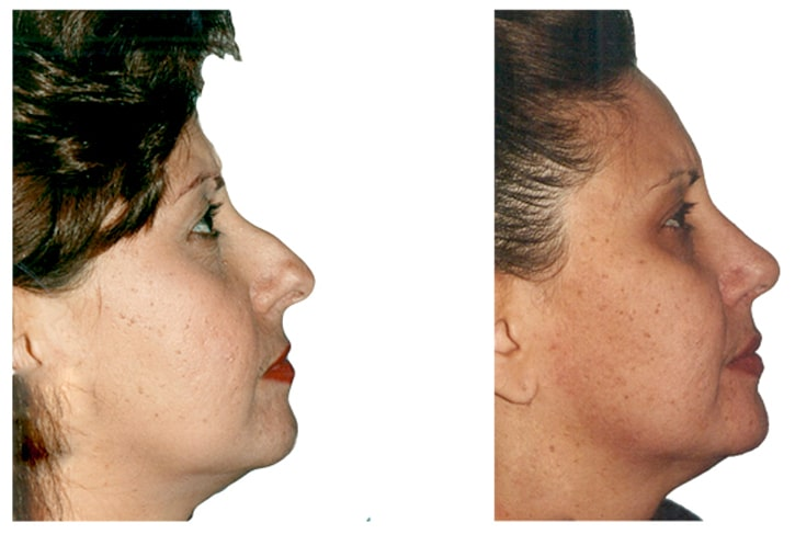 Rhinoplasty. This is a before and after plastic surgery real life picture. Natural Look Institute is a plastic surgery and cosmetic surgery clinic located in New York City. Dr. Shahar is the best plastic surgeon in NYC