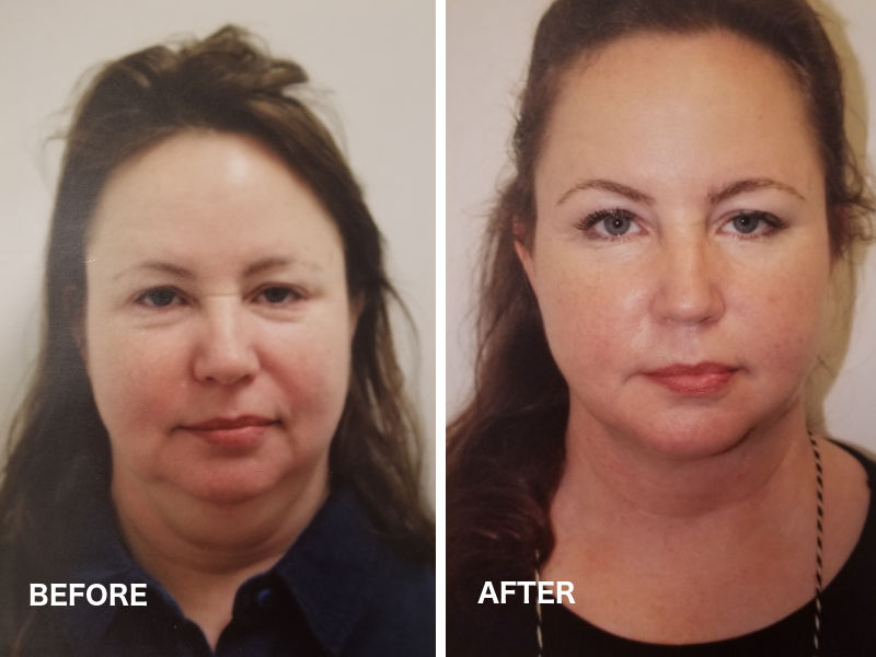 Before and after pictures of temporal lift. What is temporal lift? The Temporal Lift is a short minimally invasive procedure, a new technique developed by Dr. Shahar to refresh your look with a quick recovery.