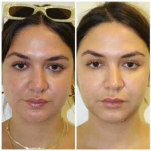 Read what NYC latina blogger LEX wrote about Dr Shahar. What are facial fat injections?